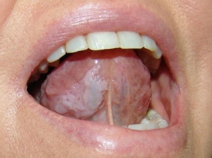 The Symptoms And Treatment Of Leukoplakia At The Initial Stage