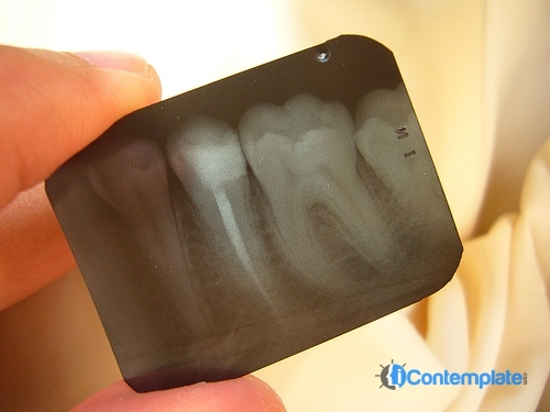 Healthy Smile: 5 Steps For Making Dental Visits Much More Pleasant