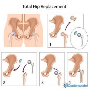 Hip Surgeon Los Angeles