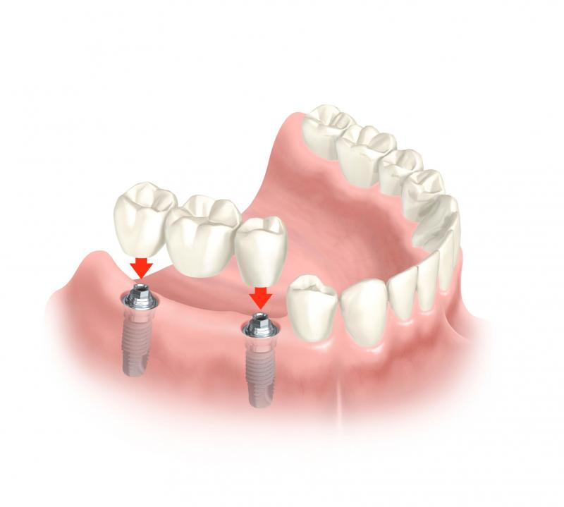 What Is Involved In A Dental Implant Surgical Procedure?