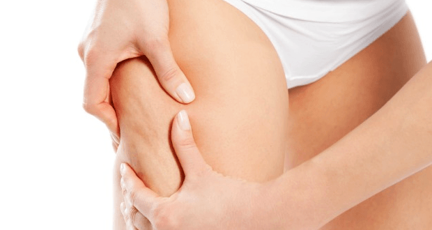 The Need For Cellulite Reduction