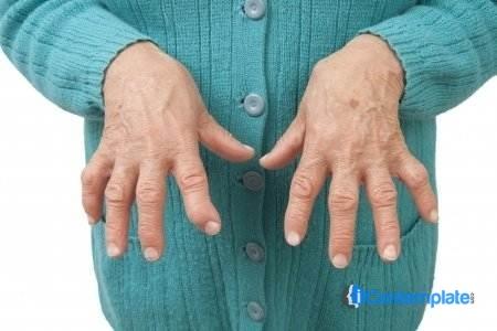 Holistic Strategies For Managing Osteoarthritis