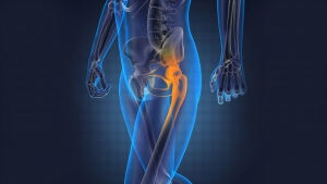 The Recovery Phase from A Hip Replacement Surgery
