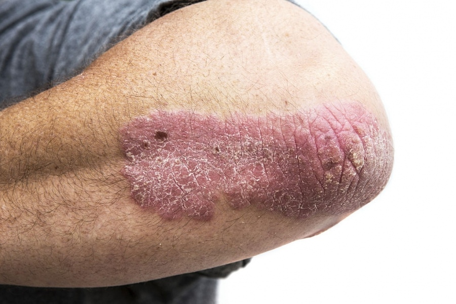 6 Things To Consider When Your Psoriasis Isn't Improving